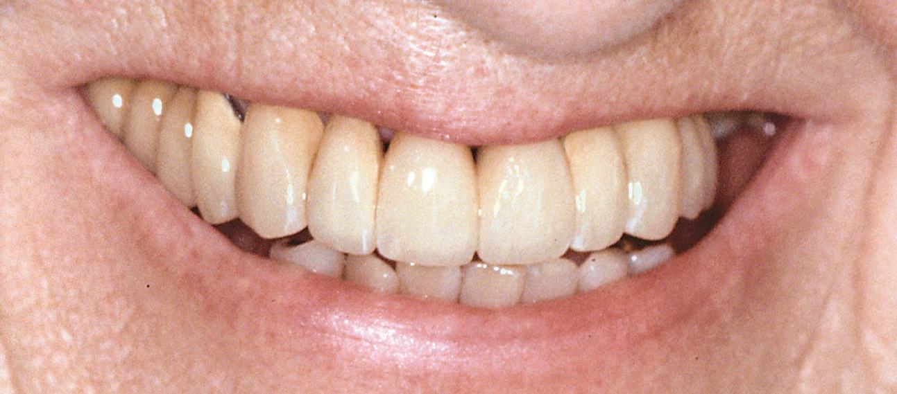 tandpine efter tandudtrækning