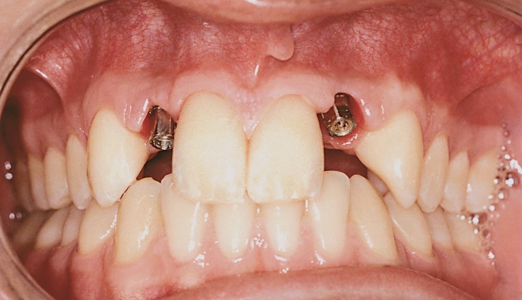 tandlæge implantat københavn