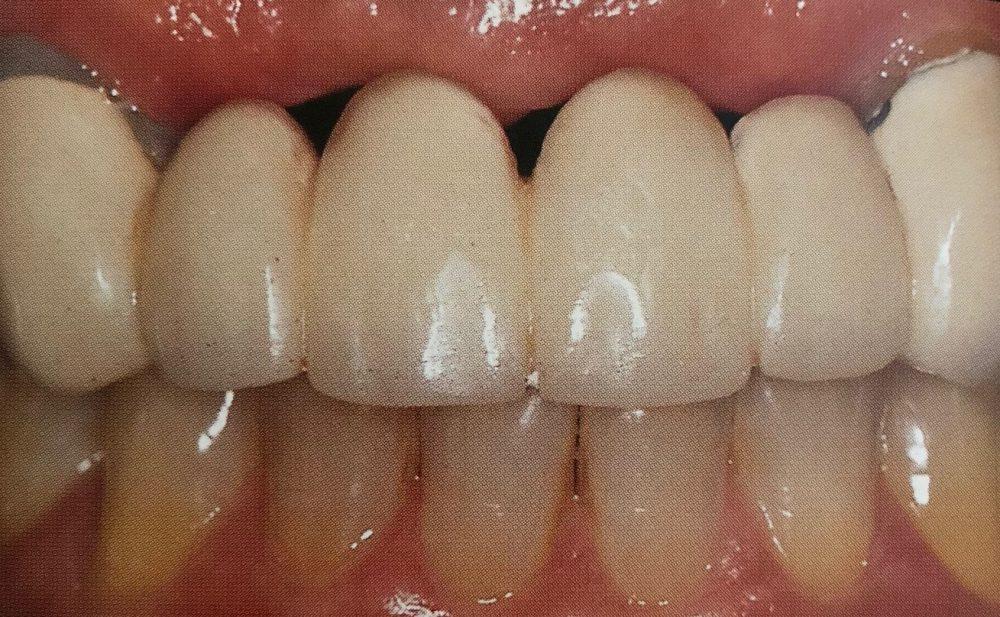 rygning efter tandudtrækning